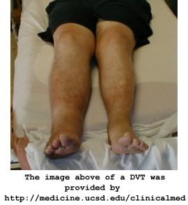 Deep Vein Thrombosis Dvt Blood Clot In Leg Clotcare